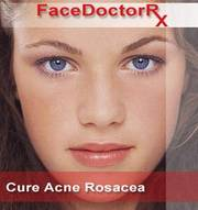 Obtain the right cure for acne and rosacea using Facedoctor's products